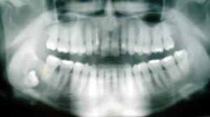 wisdom_tooth-300x168